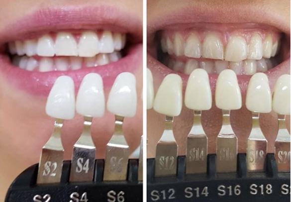 Zahnfarben ICE Zirkon